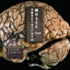 brainimplants